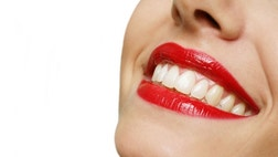Here are  ways to give your smile a lift this holiday without crashing your wallet