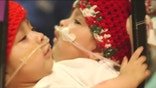 Doctors at Texas Children'sHospital are planning the separation of conjoined twin girls, confident that they will survive, and survive well, on their own.