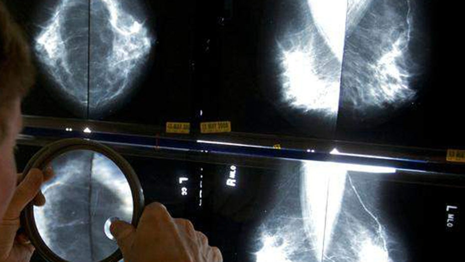 New breast cancer drug could be game-changer