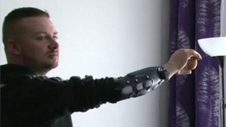 Bionic limbs become reality