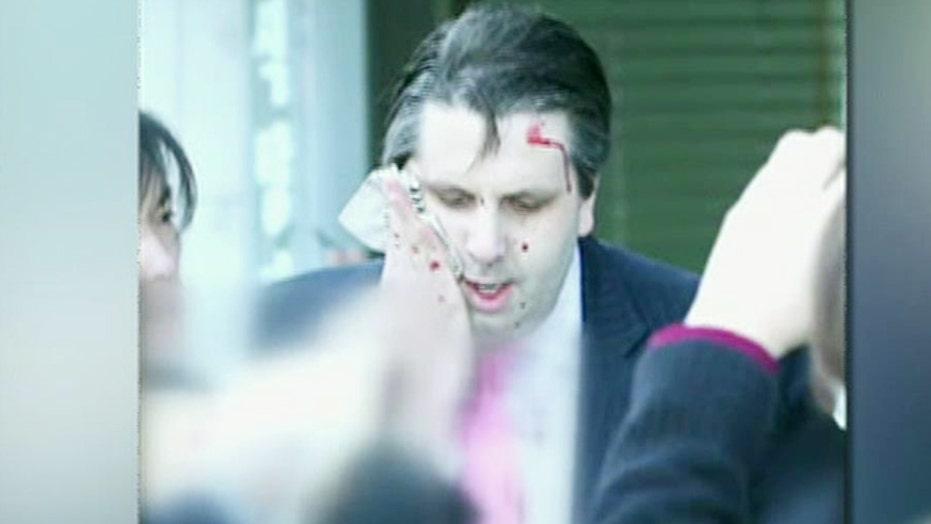 US ambassador to South Korea sliced by man with razor