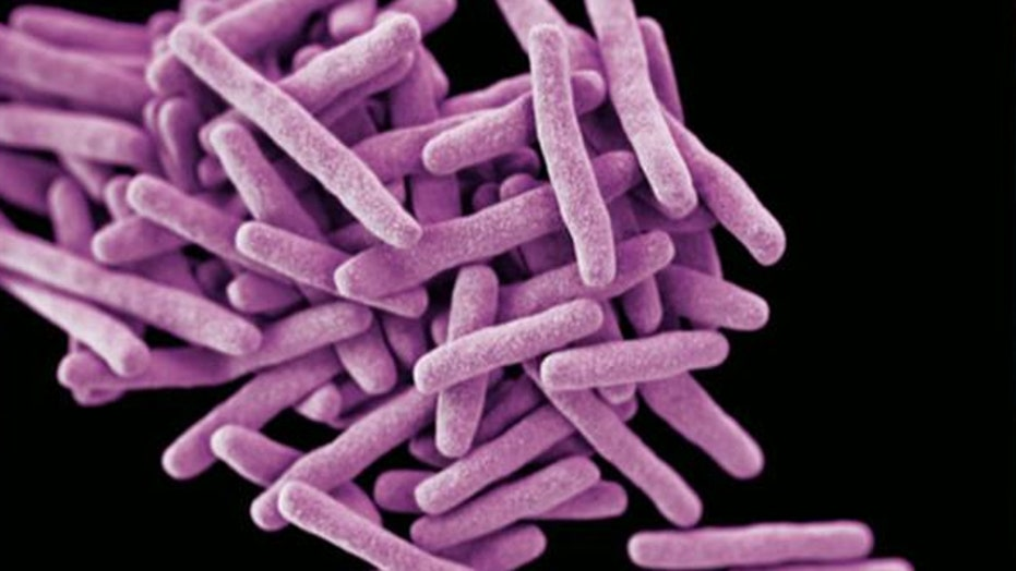 Rare strain of tuberculosis being treated in Maryland