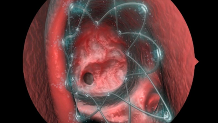 Stent makes sinus surgery more comfortable