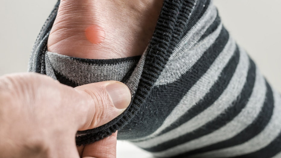 Foot blisters: to pop or not to pop?