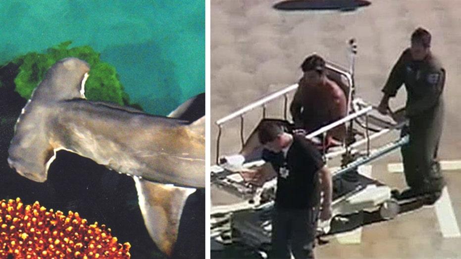 Calif. kayaker gets foot bitten by hammerhead shark