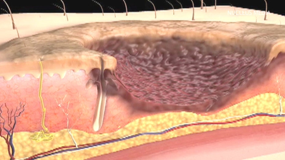 What happens during a skin graft procedure?