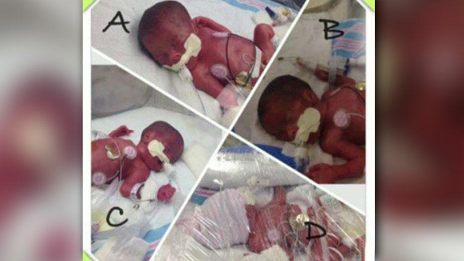 Mother expecting triplets delivers 'surprise' quadruplets