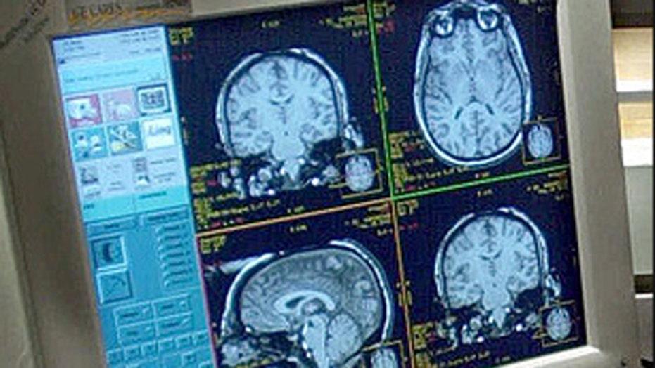 Report: 1 in 3 seniors dies with dementia