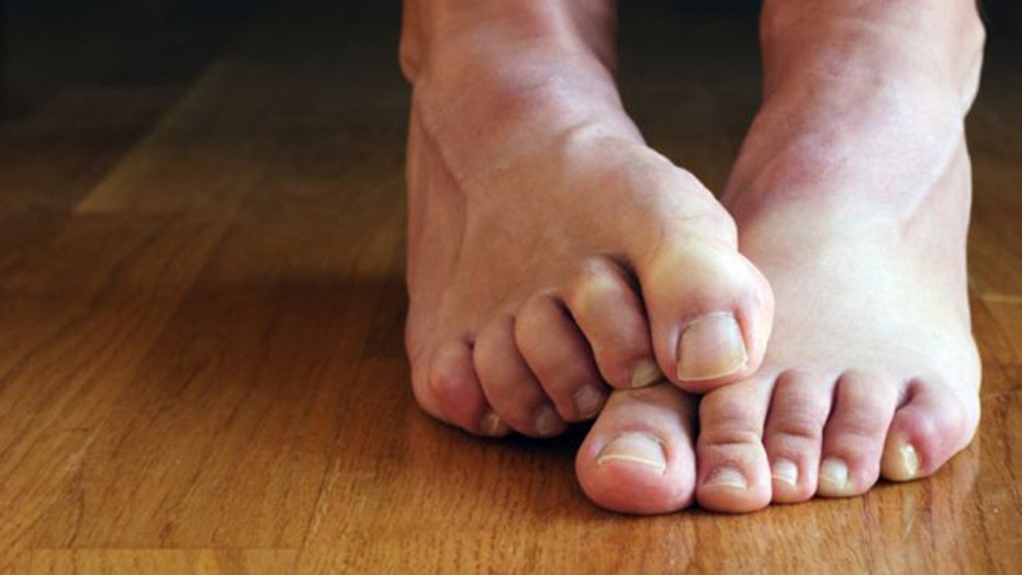 Home cures for embarrassing health problems
