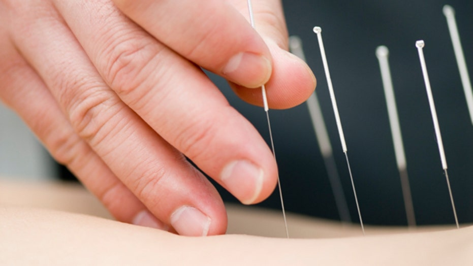 Relieving stress with acupuncture