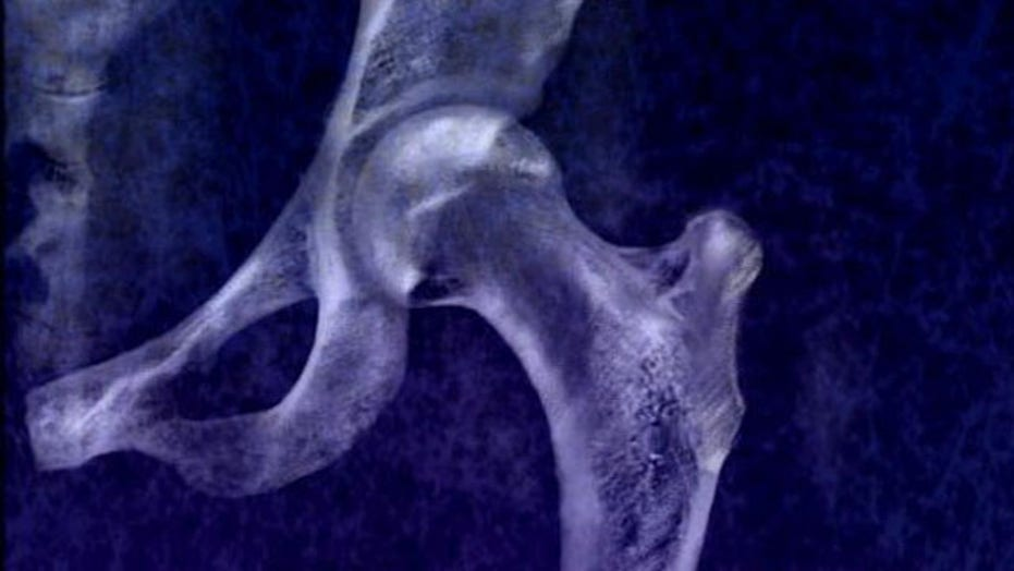 How can you protect yourself from osteoporosis?