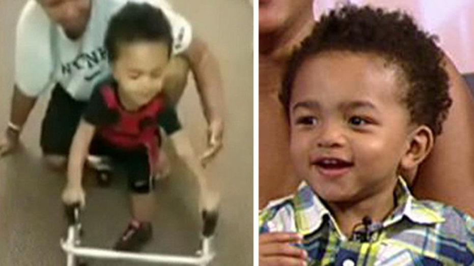 Two-year-old amputee takes first steps in inspiring video