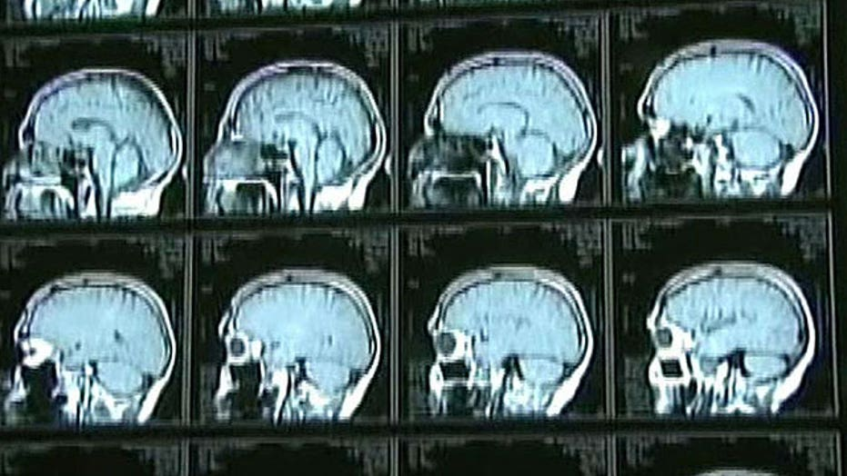 Hospital exposes patients to rare, fatal brain disease?