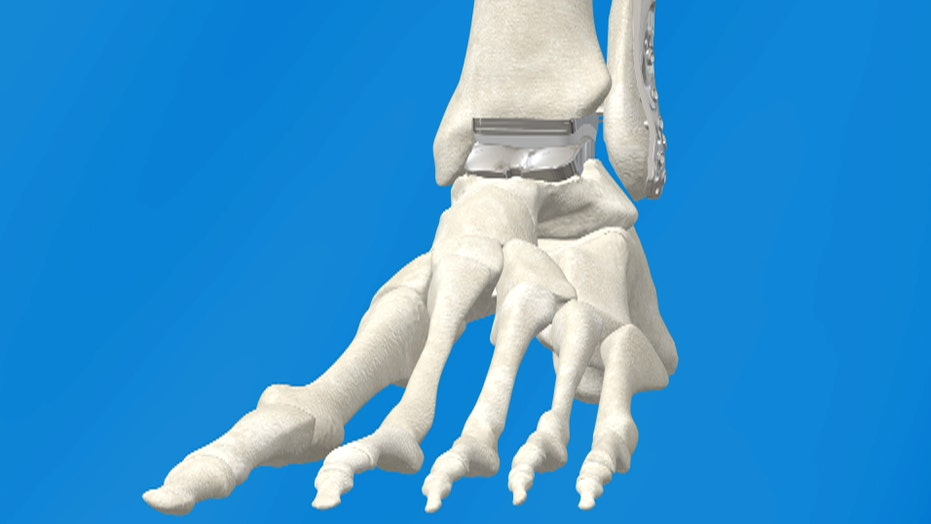 New technology improves success rate of ankle replacement surgeries ...