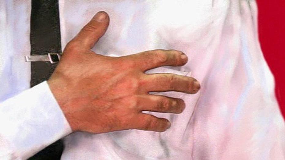 Diagnosing, treating heartburn and acid reflux