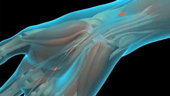 What happens during carpal tunnel release surgery?