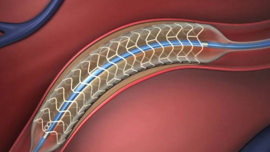 Doctors test stents that dissolve