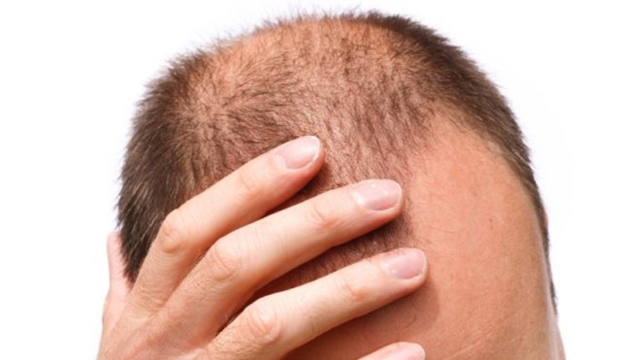 Top Five Cure For Baldness News - Circus