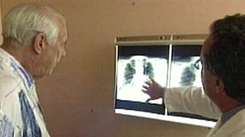 Study: Test can help detect early lung, prostate cancer