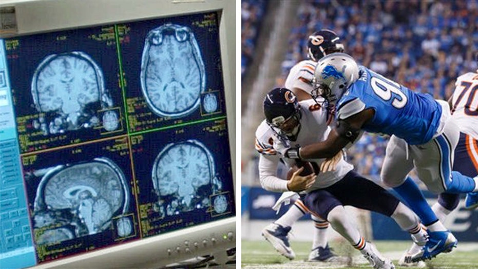 Head injuries are growing concern for athletes