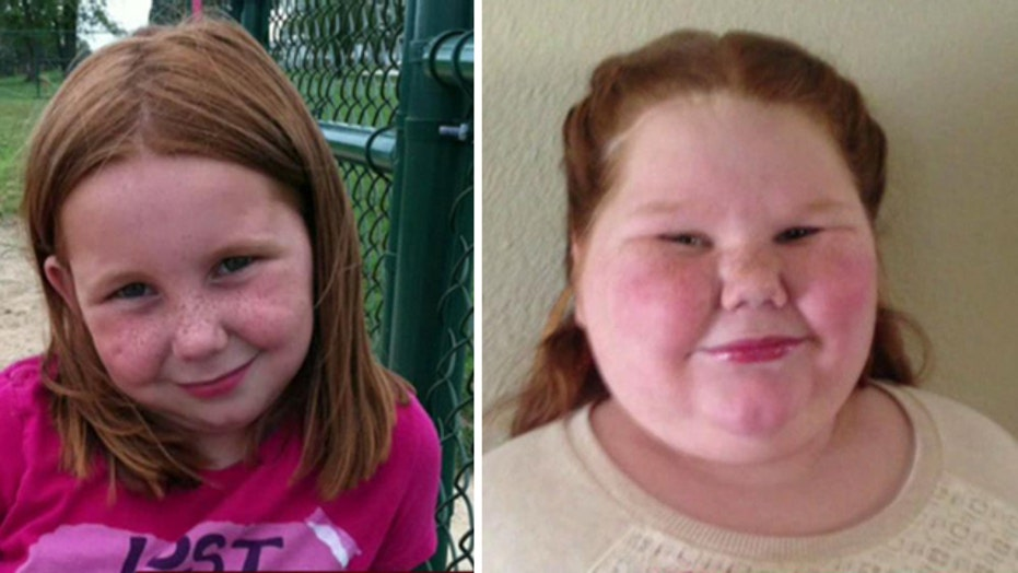 Insurer denies 12-year-old girl weight-loss surgery
