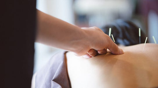 Medicare proposal would pay for acupuncture to treat lower back pain