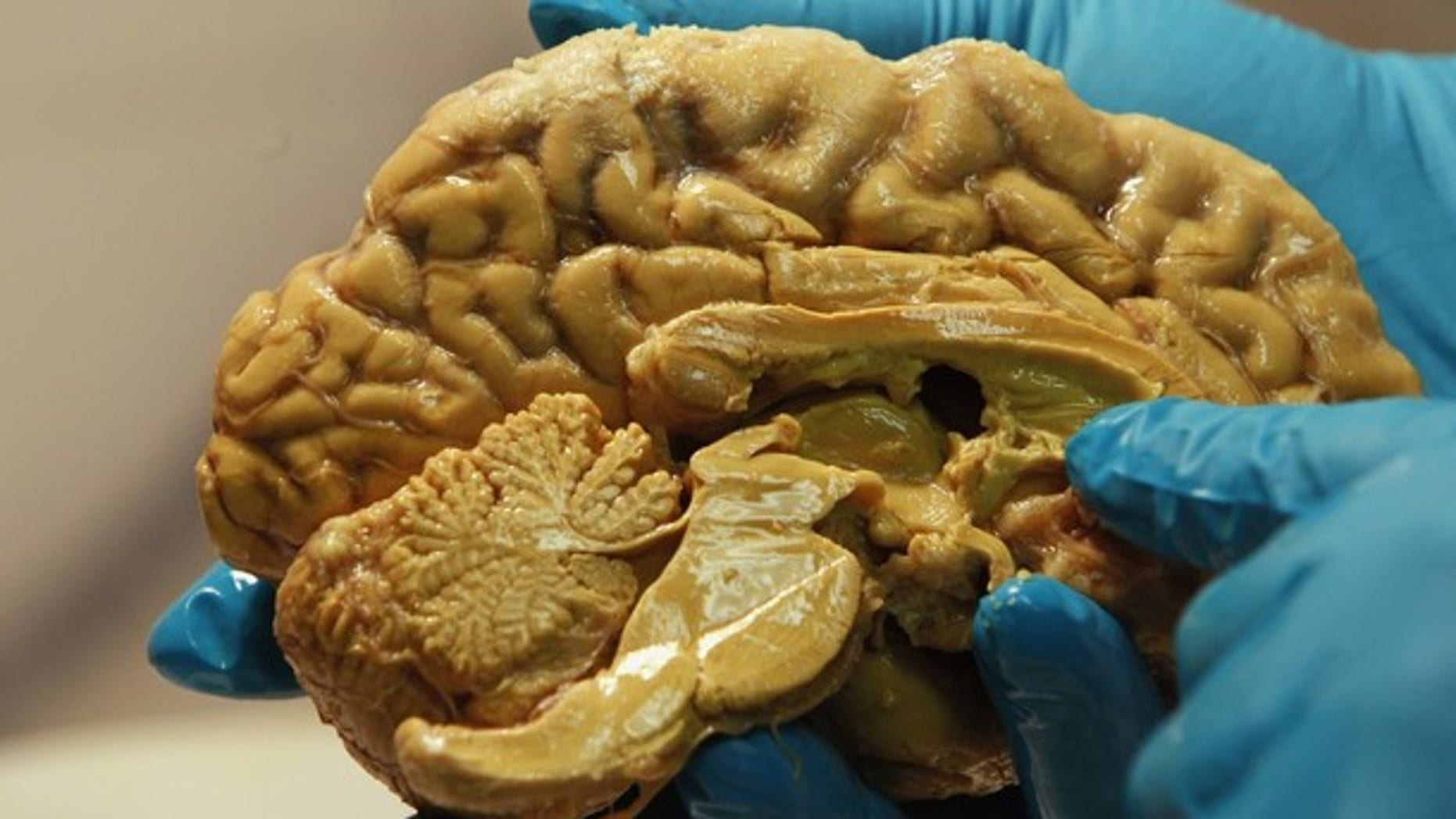 March 16, 2011: Hungarian scientist Tamas Freund holds a human brain at the Institute of Experimental Medicine of Hungarian Academy of Science in Budapest.