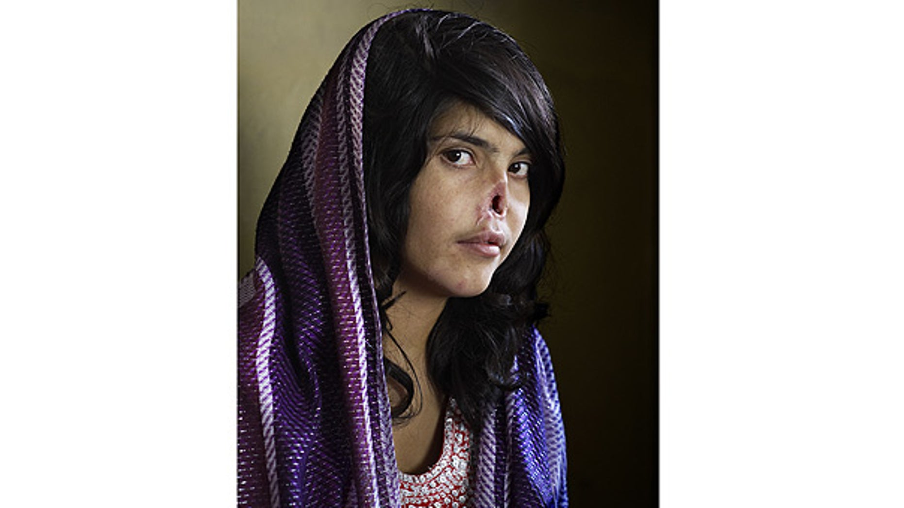 World Press Photo of the Year 2010 shows Bibi Aisha, an 18-year-old woman from Oruzgan province, Afghanistan.