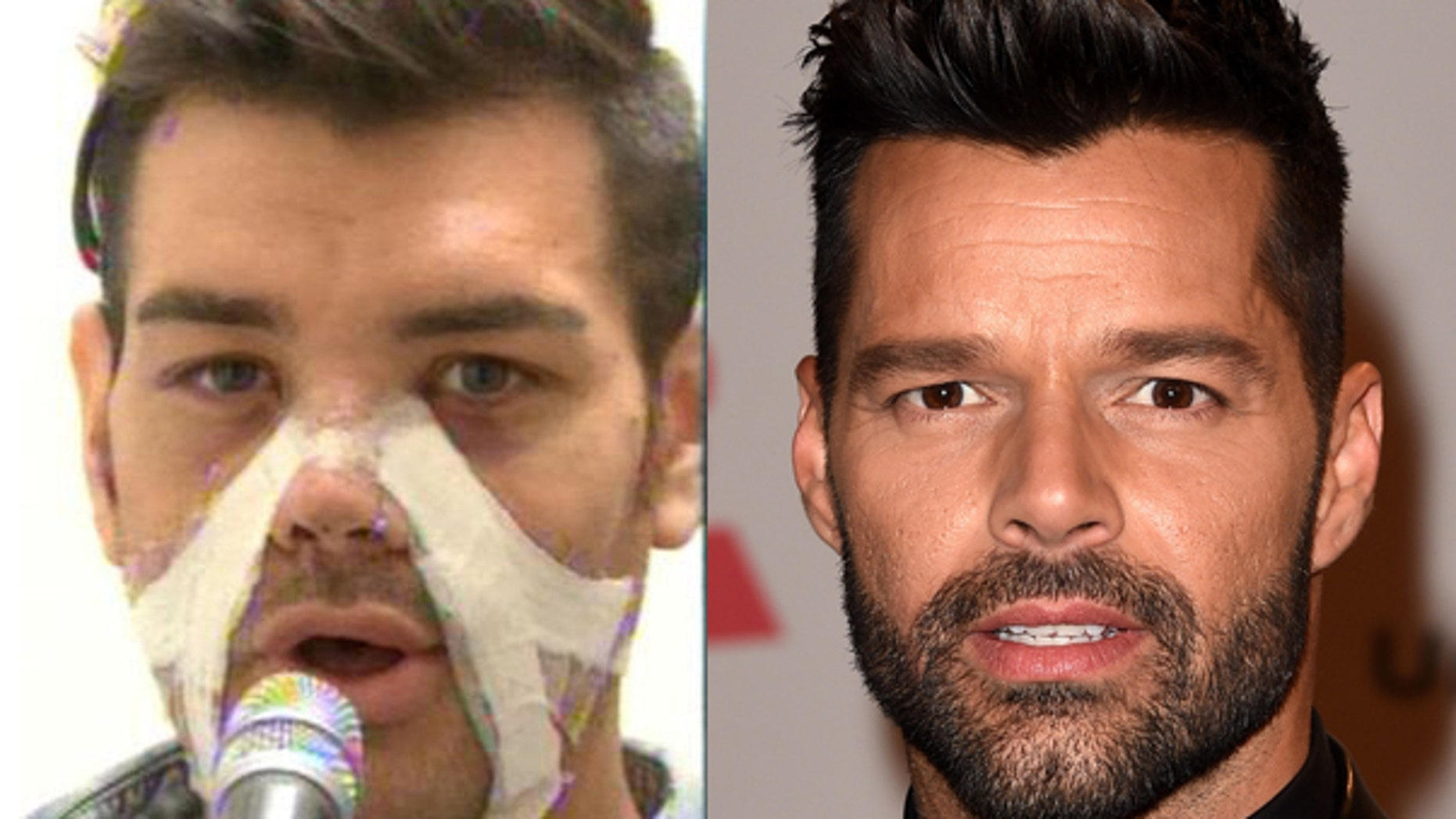 Fran Mariano after his surgery to look like Ricky Martin.