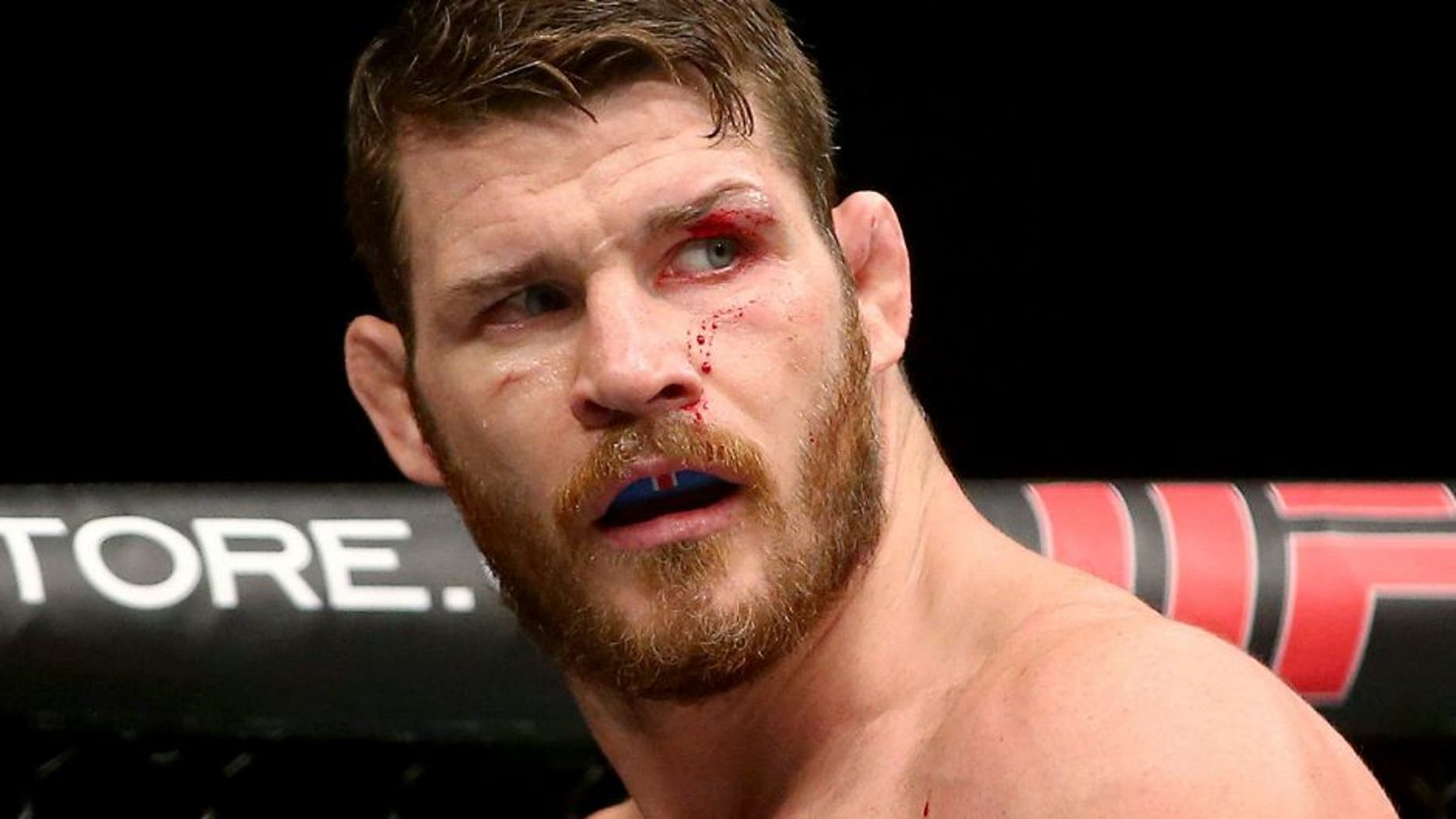SYDNEY, AUSTRALIA - NOVEMBER 08: Michael Bisping of England is seen with a cut over his left eye in his loss to Luke Rockhold in their middleweight fight during the UFC Fight Night 55 event at Allphones Arena on November 8, 2014 in Sydney, Australia. (Photo by Mark Kolbe/Getty Images)