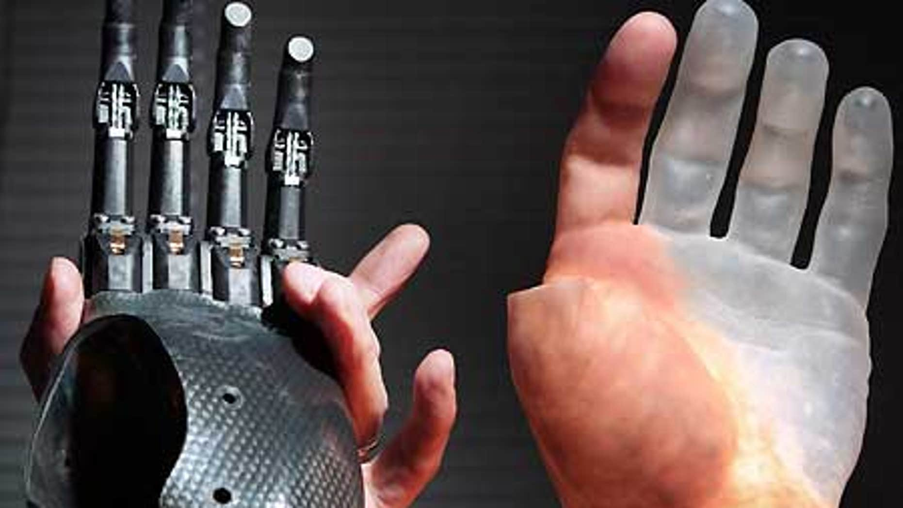 A pianist is is among the first to get Touch Bionics' custom-made fingers, called ProDigits