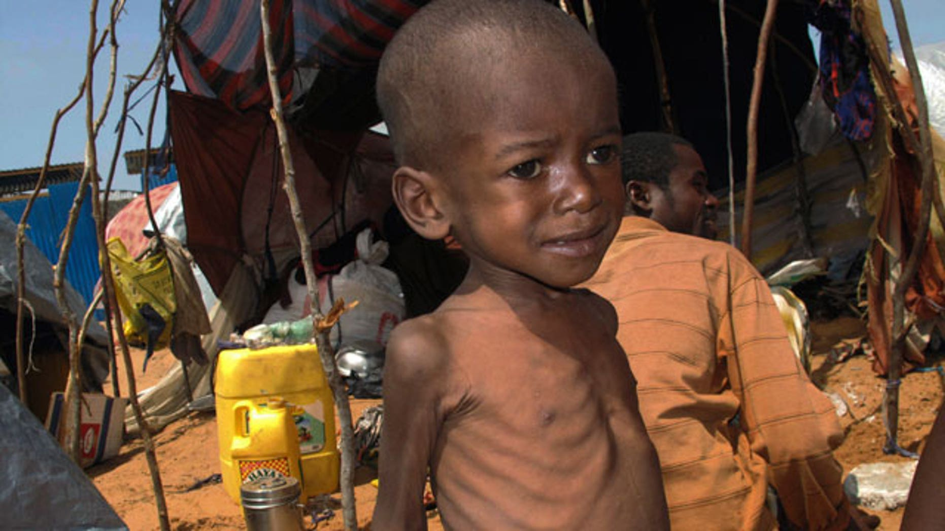 A Somali malnourished child from southern Somalia stands in front of a makeshift shelter in Mogadishu, Somalia, Saturday, July 23, 2011.