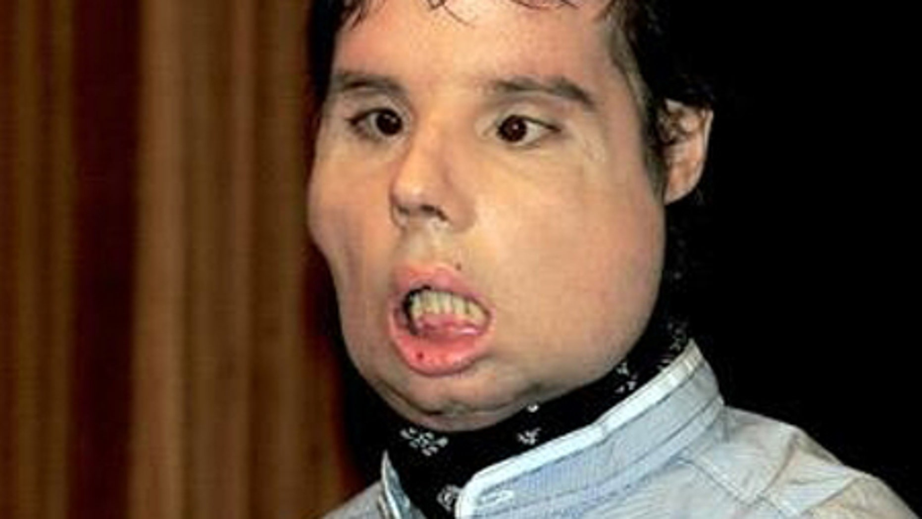 images World's first full face transplant