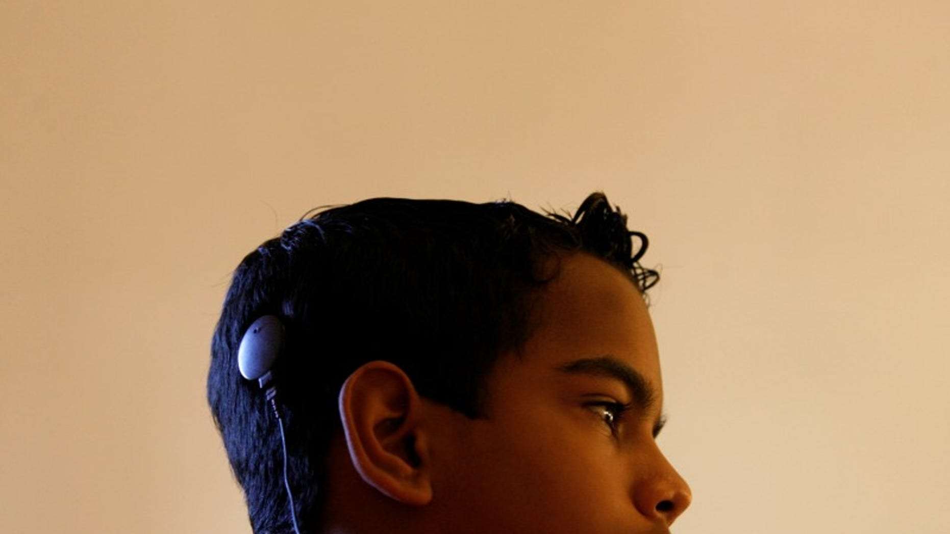 A speech and hearing impaired child with a cochlear implant which he received free of charge attends a therapy session at the Pradera hospital in Havana