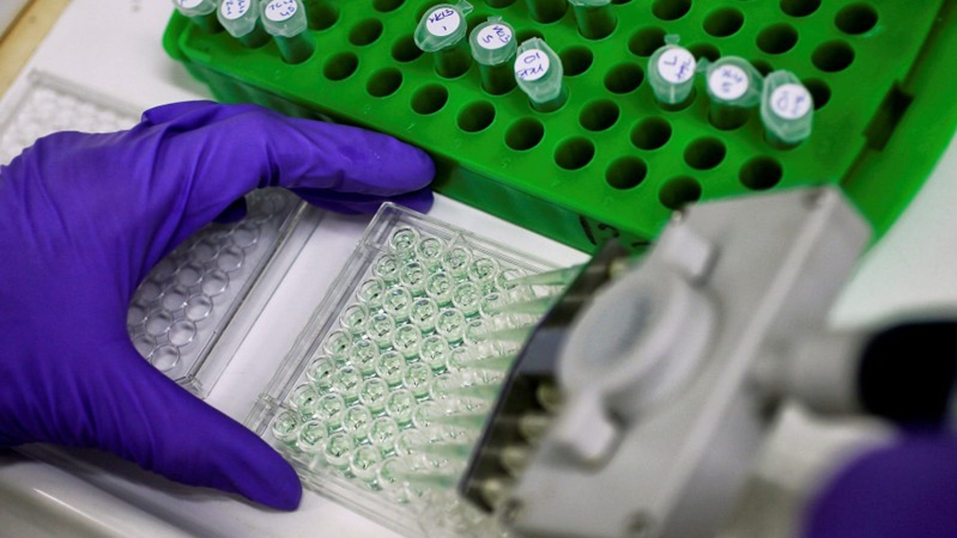 FILE PHOTO: Scientist prepares protein samples for analysis in a lab at the Institute of Cancer Research in Sutton, Britain.