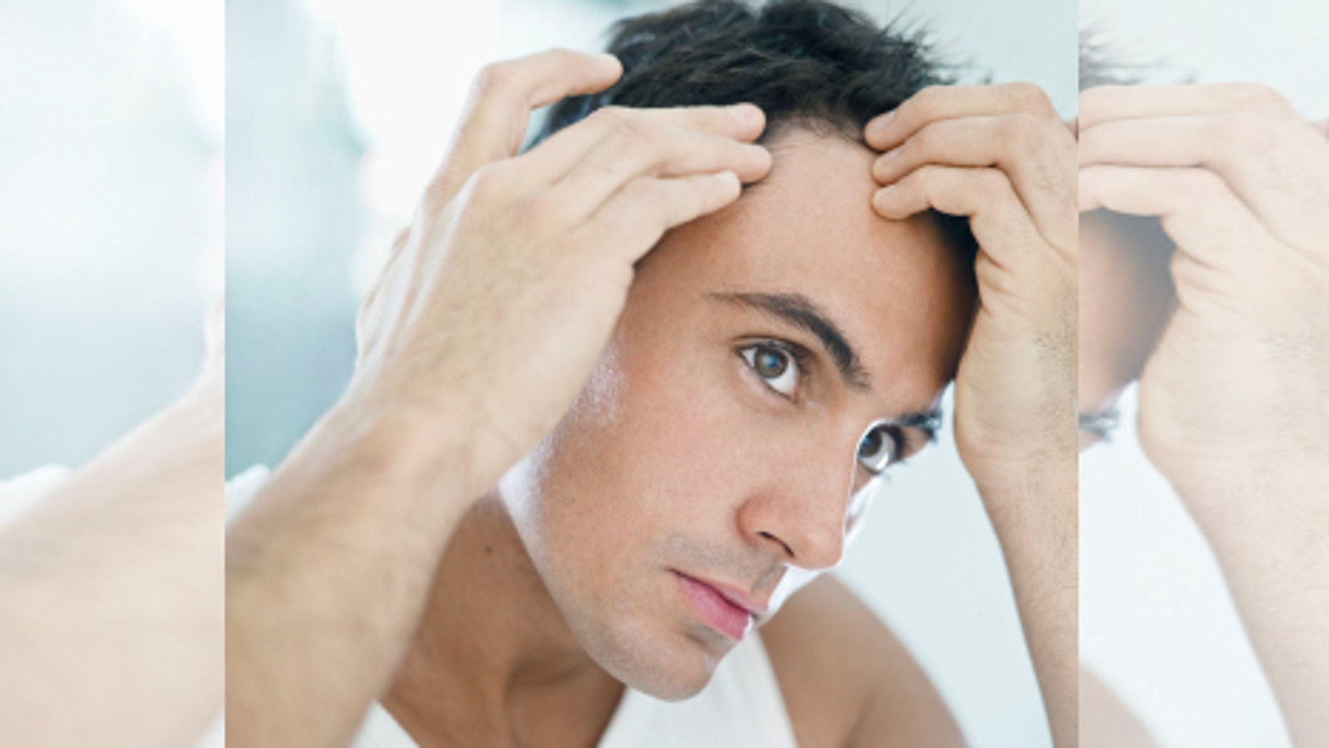 Early Male Pattern Baldness Signs Interesting Decorating Ideas