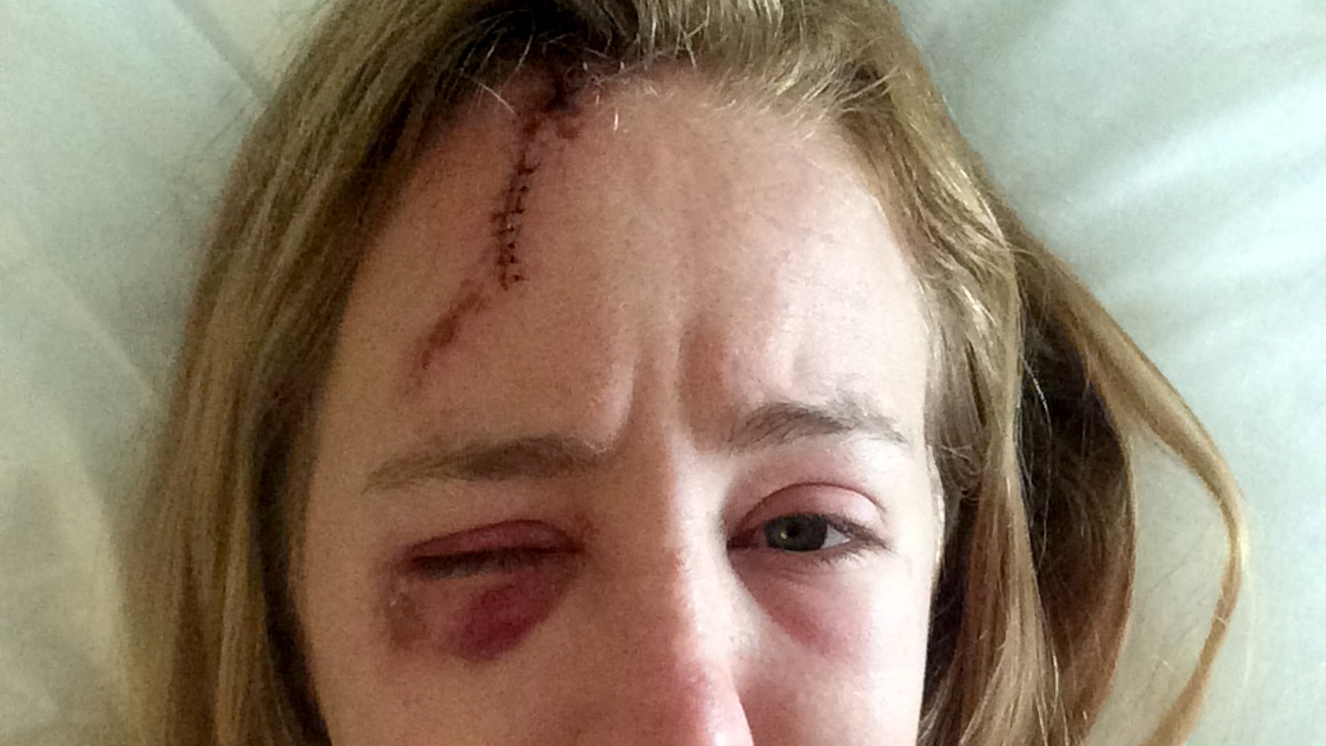 In this photo taken on June 19, 2015 provided by Mollyann Hart, Hart poses for a selfie showing injuries from a lightning strike while recovering at a hospital in Hagerstown, Md. She and her sister were struck after taking shelter inside a stone observation tower at Washington Monument State Park. The tower reopened Thursday, April 28, 2016, after a closure to repair damage caused by the strike. (Mollyann Hart via AP)