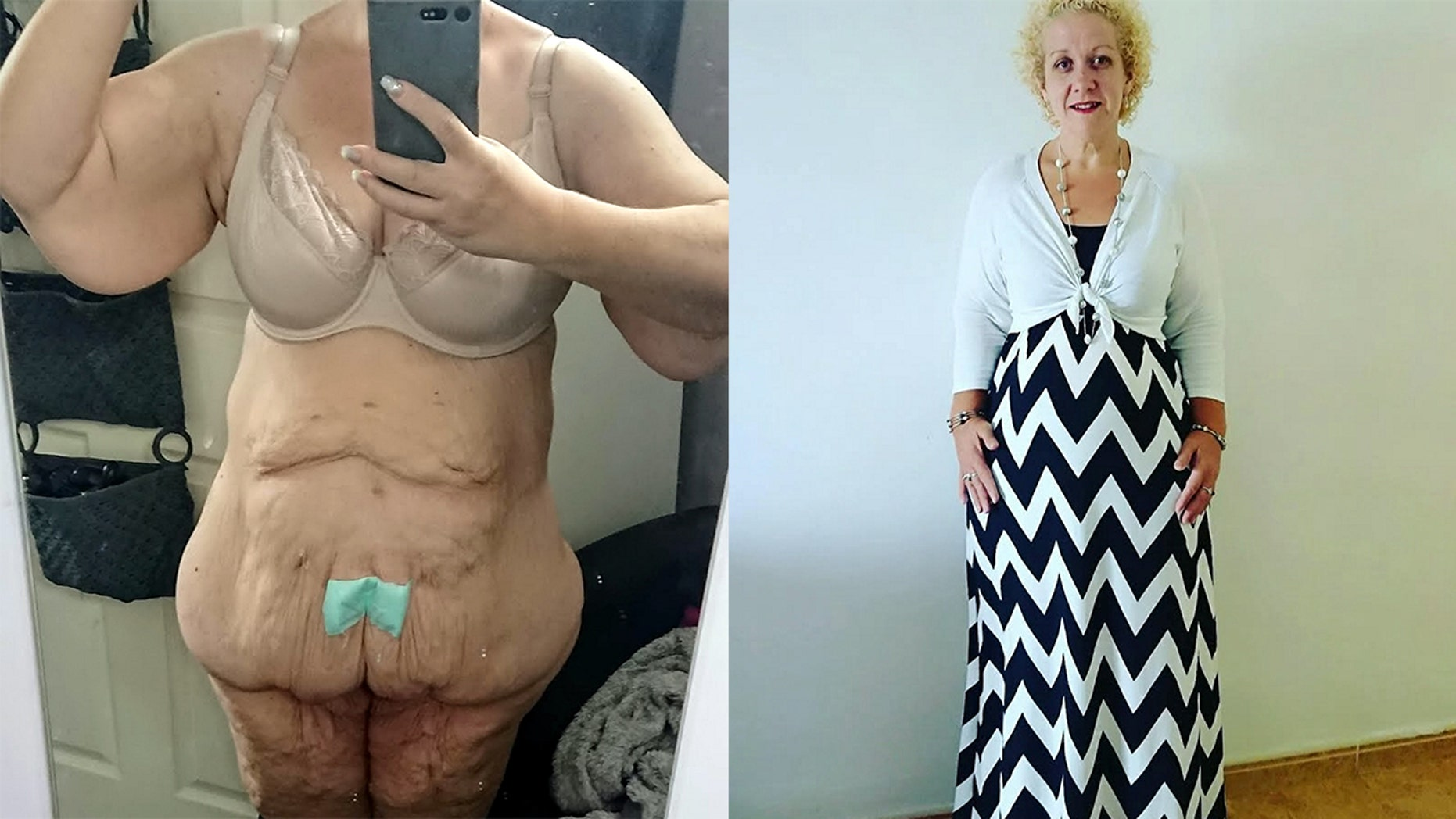 A woman who lost 252 pounds says she's been rejected by multiple men on Tinder after sending them pics of her excess skin.