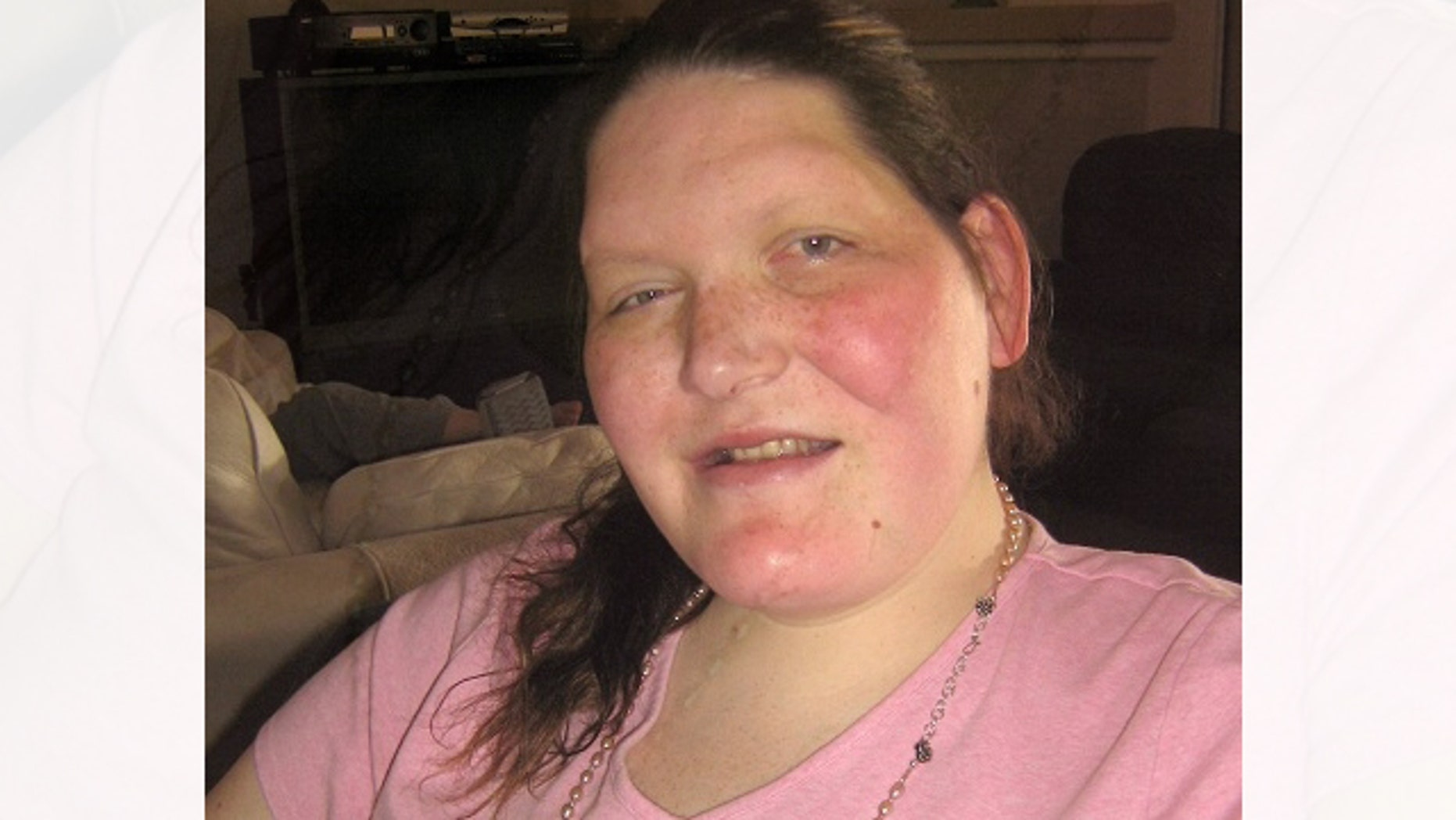 Tanya Angus, 33, has acromegaly.