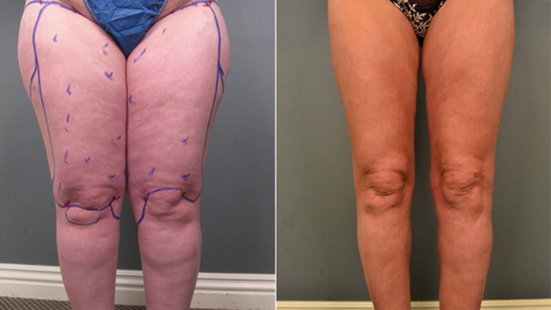 Liposuction: A surprising treatment for a painful condition