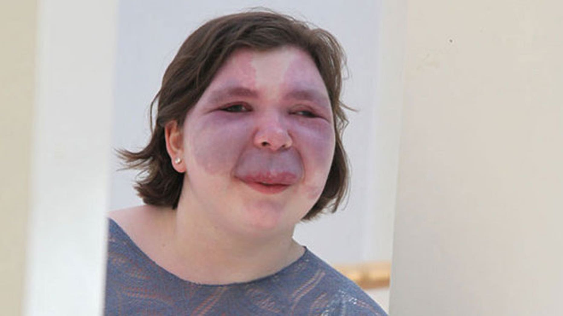 Photo of a woman with Sturge-Weber Syndrome. One of the classic symptoms of the condition is a port-wine stain that typically appears on the face. Credit: Sturge-Weber Foundation
