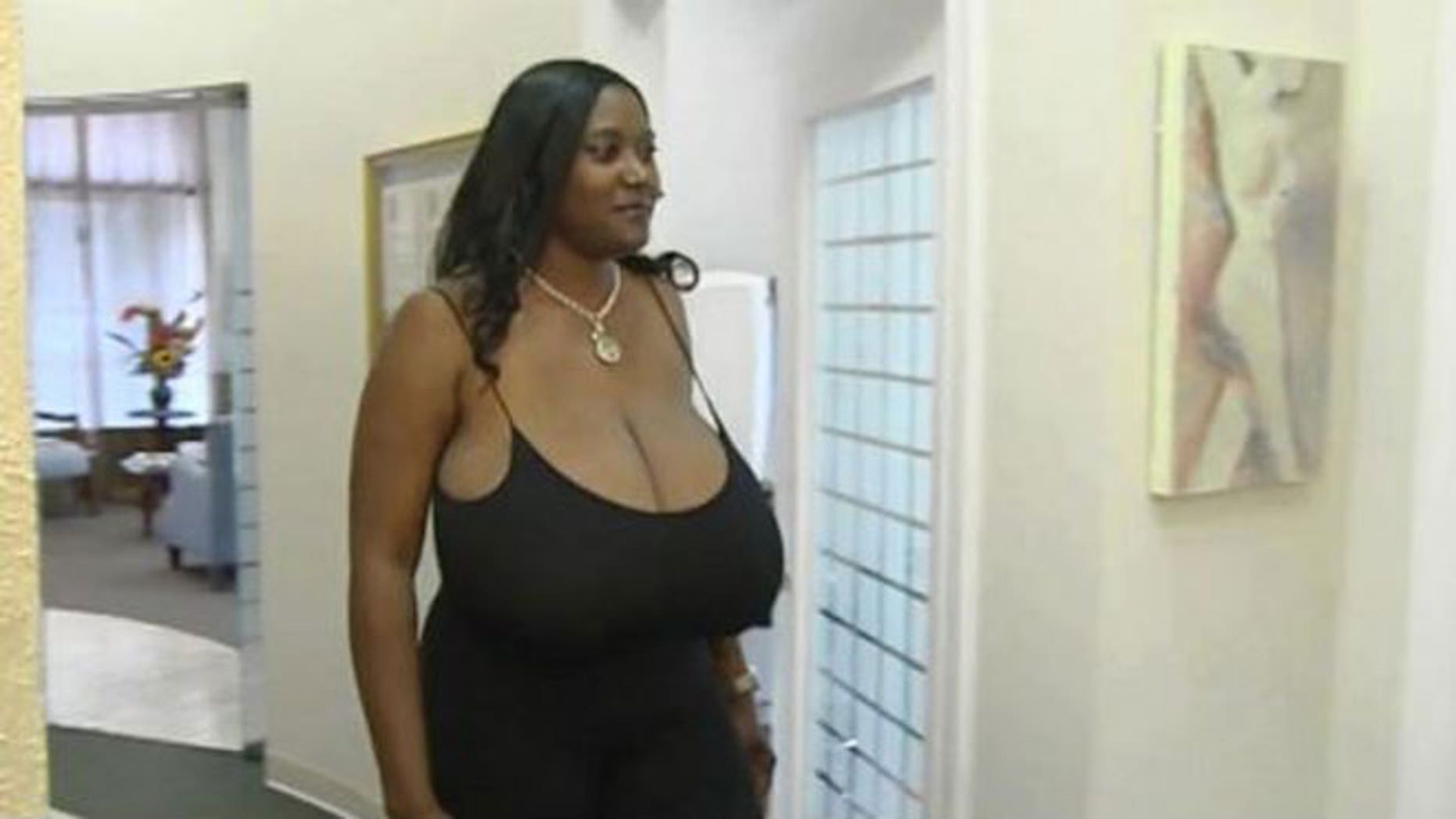 Kerisha Marks, 40, of Beaumont, Tex., sought surgery after a rare hormonal disorder caused her breasts to grow to size 36NNN.