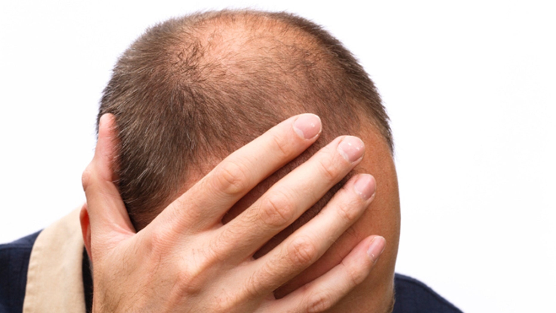 Early Male Pattern Baldness Signs Unique Ideas