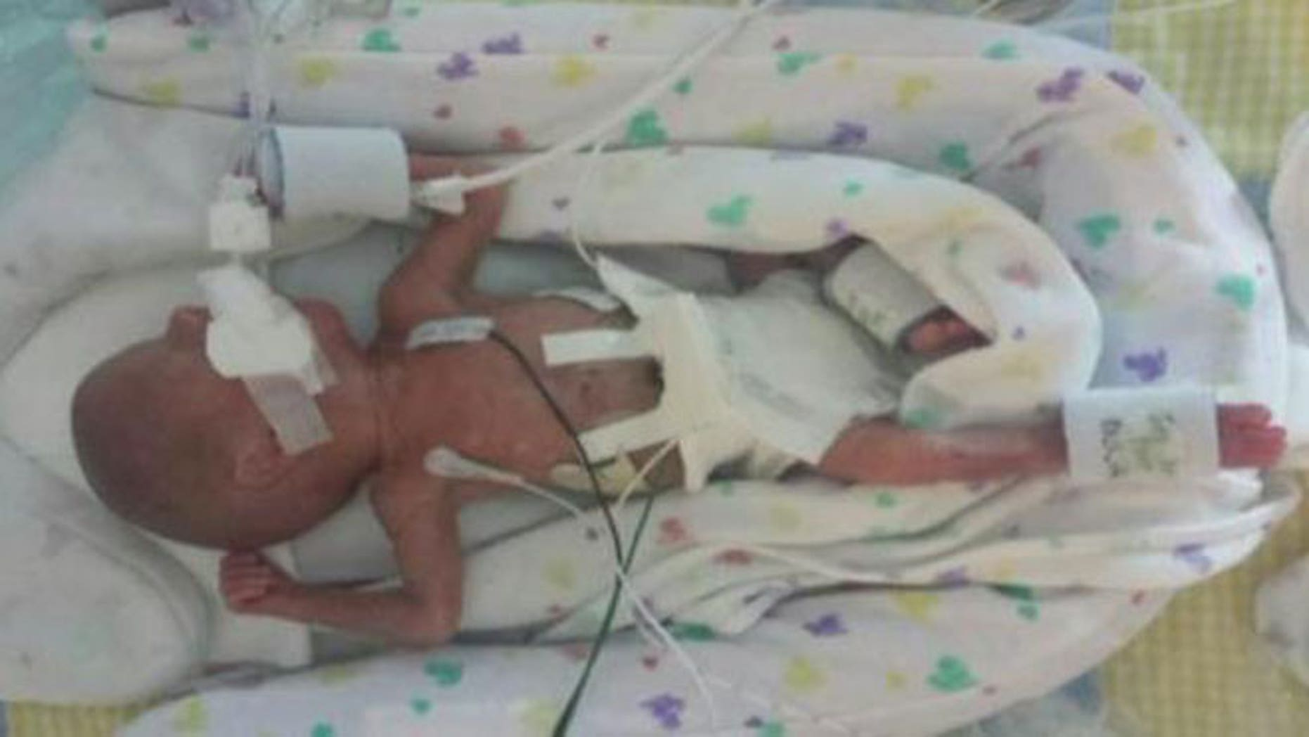 Link Gorveatt, pictured here, was born extremely premature at 23 weeks old on Tuesday, Sept. 29. He and his twin brother, Logan, suffered from twin-to-twin transfusion syndrome, a condition marked by a shared placenta in utero.