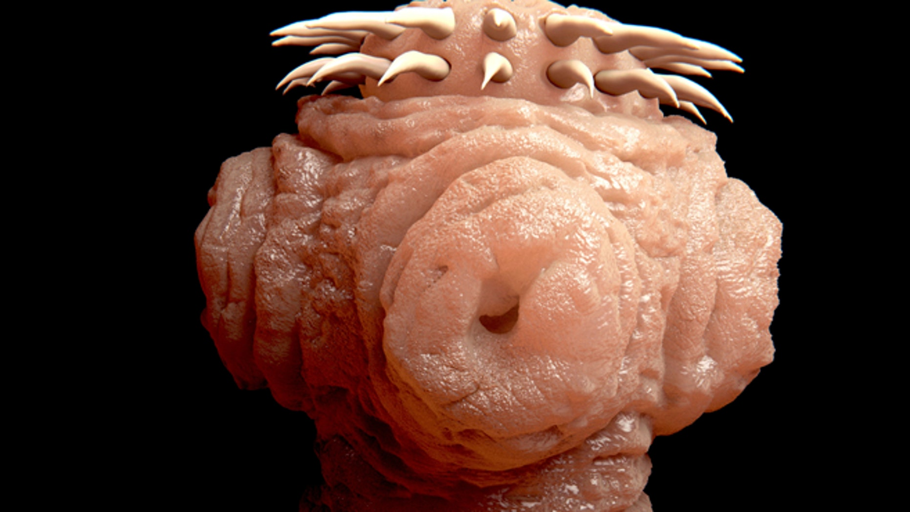 A look at a tapeworm under a microscope.