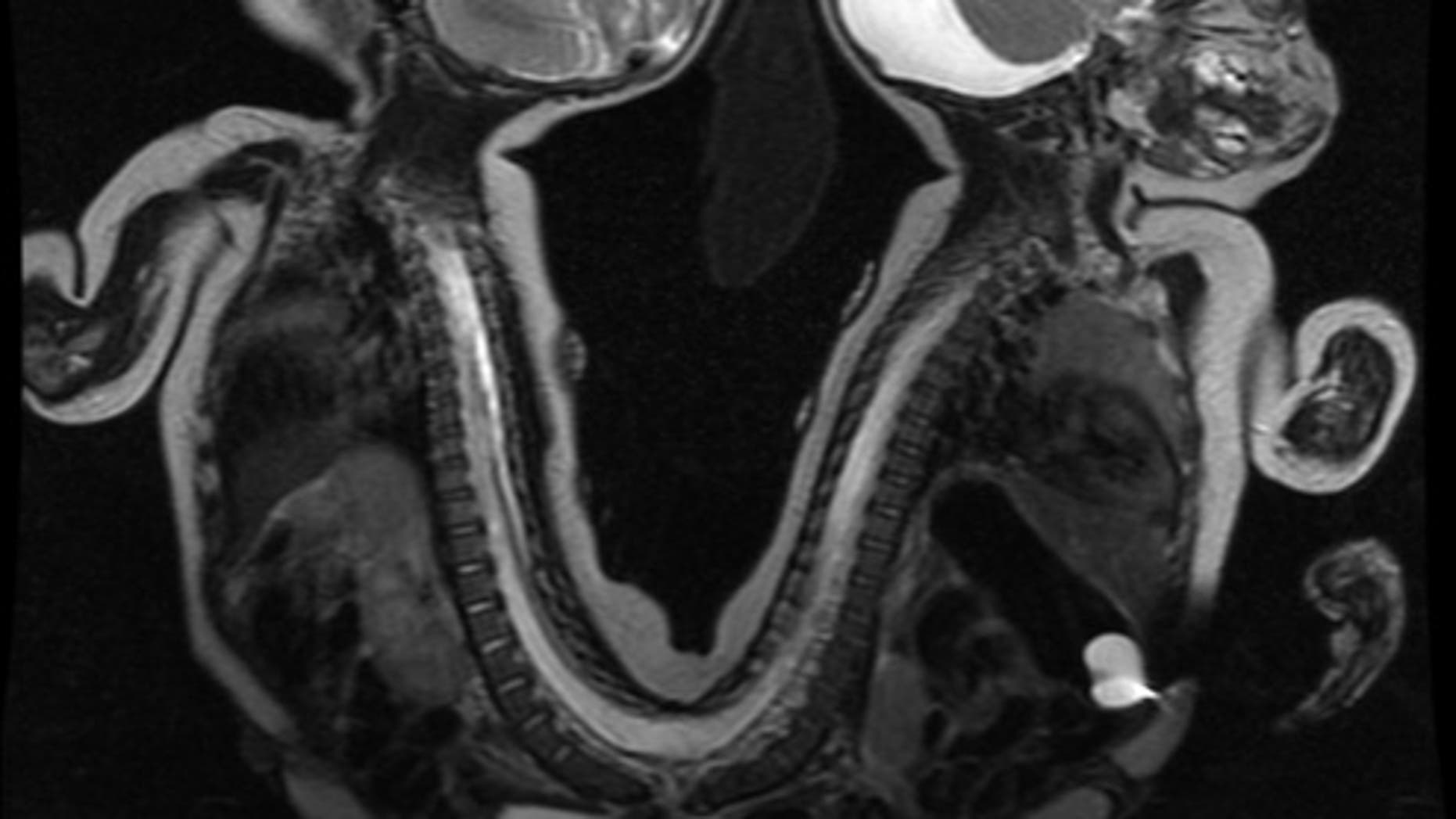 The conjoined twins in a MRI image before they were separated.