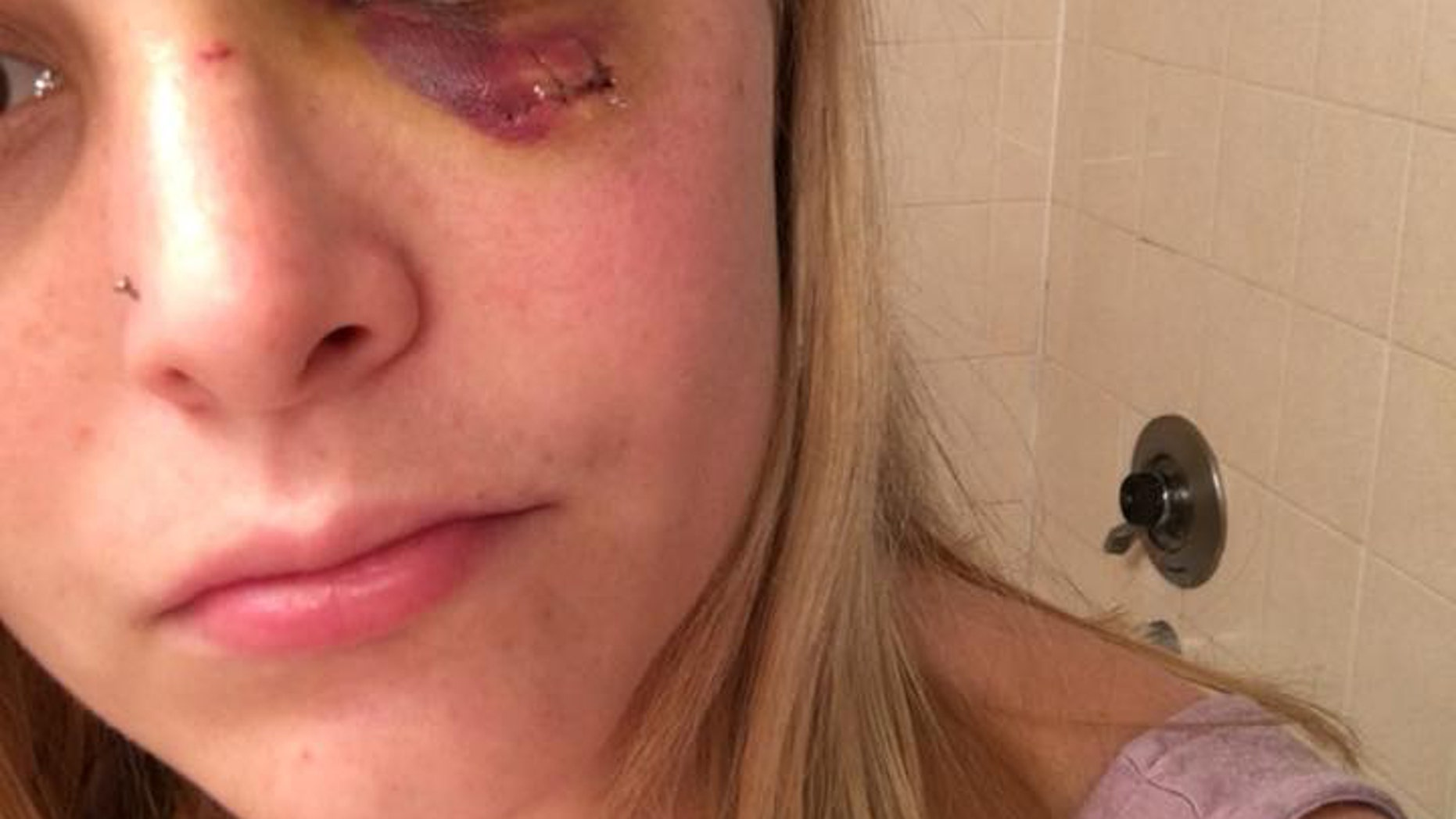 Amanda Comparetto, 23, is hoping to find the man who punched her in the face at a Florida bar.