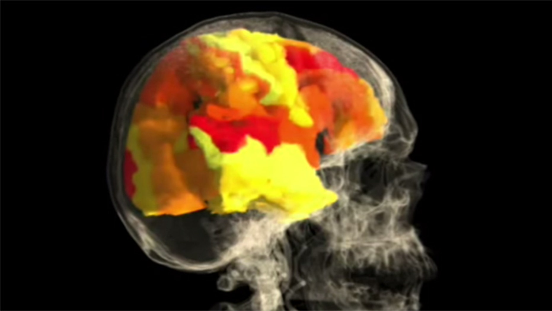 A female human brain during orgasm--the whitish-yellow portions signify highest activity. (Image: Via YouTube)