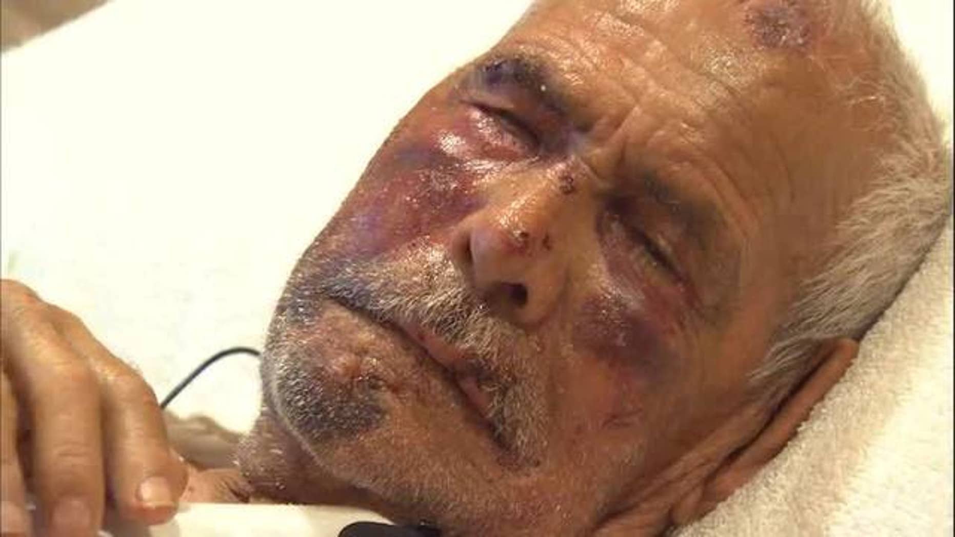 Rodolfo Rodriguez, 92, was beaten in the face with a break and stomped on during an attack on July 4.