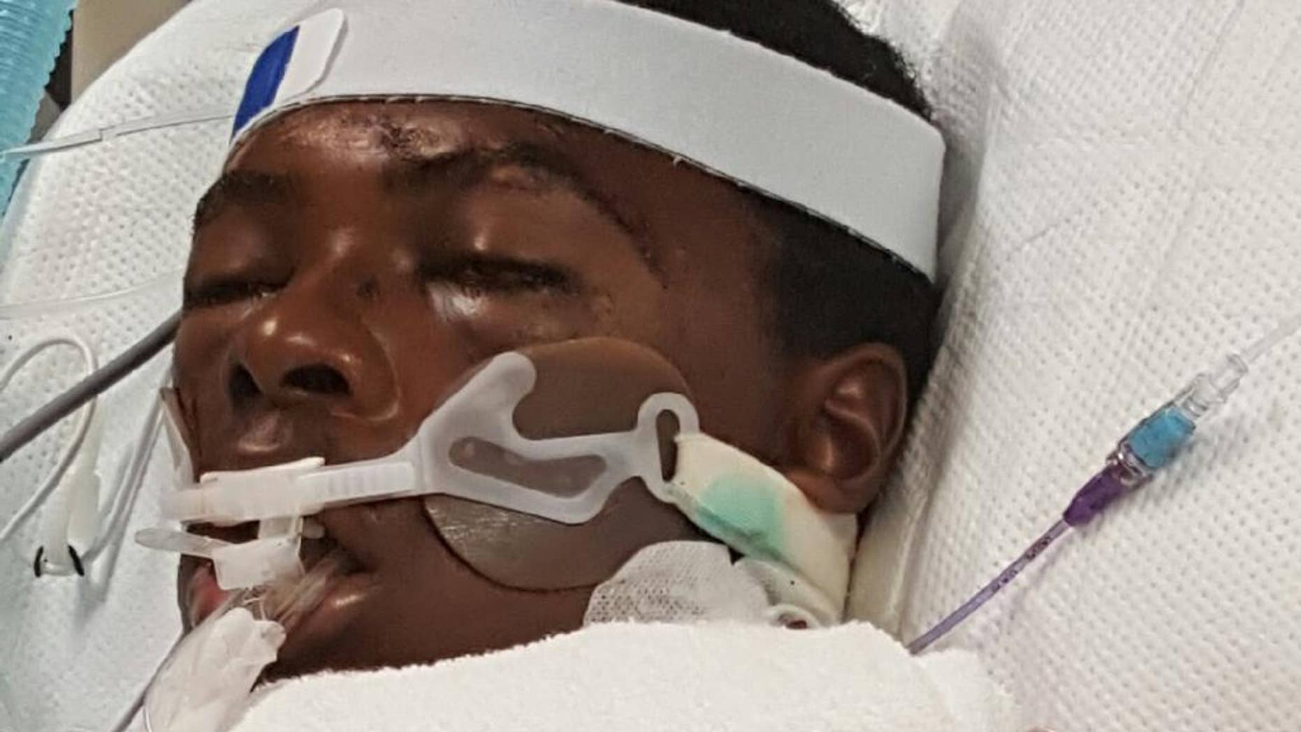 FILE - This photo provided by Prinice Thomas shows his nephew Tawon Boyd in the hospital after he was punched and held to the ground by Baltimore County police officers after a confrontation outside his home on Sunday, Sept. 18, 2016. The Maryland medical examiner's office said Boyd's death after a violent struggle with police was accidental and likely caused by drug use. Boyd's family attorney, A. Dwight Pettit said he'll have an independent expert review the autopsy and hospital records. (Prinice Thomas via AP, File)